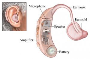 hearing aid diagram